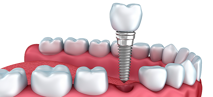 immediate loading of dental implants